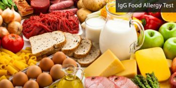 IGG food Sensitivity Test