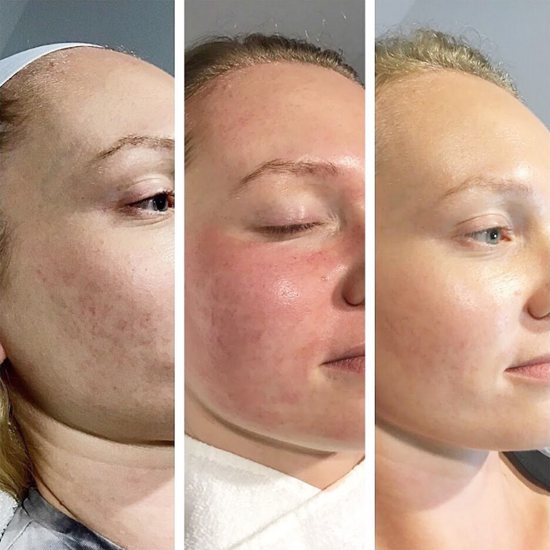 Prp Treatment Before After Facial Rejuvenation