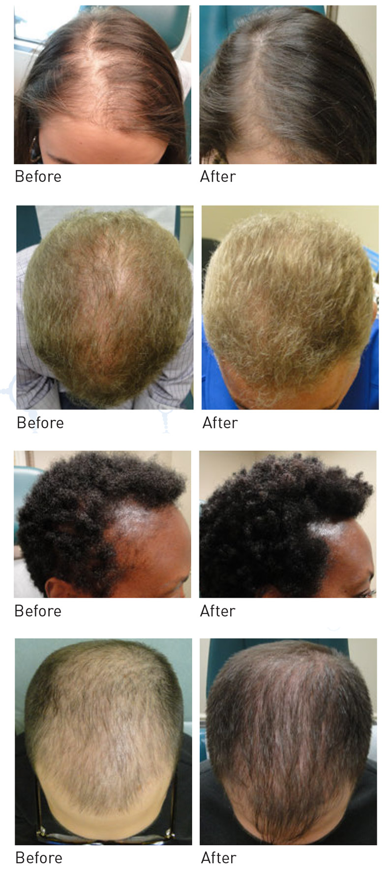 Prp Treatment Hair Loss Before After